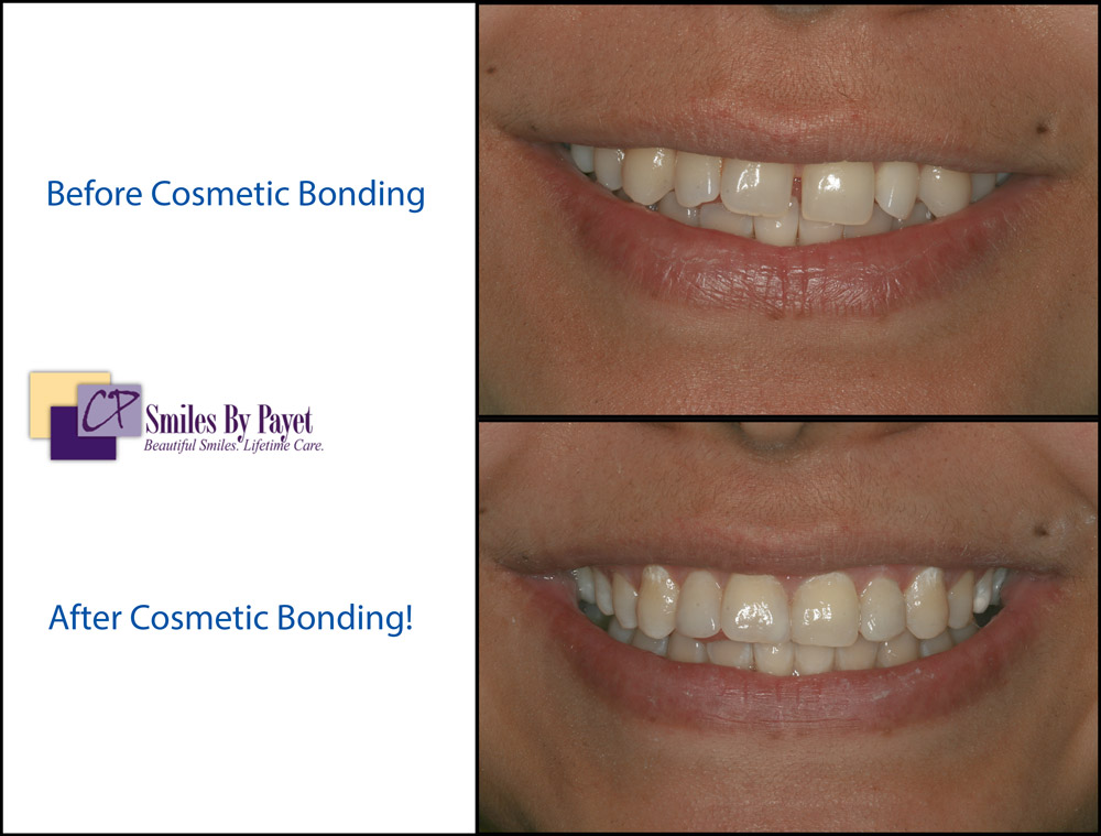 Cosmetic Tooth Bonding to Close Spaces Between Teeth