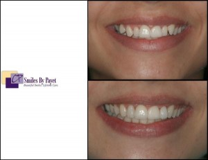 A beautiful, affordable kind of cosmetic dentistry with braces and bonding