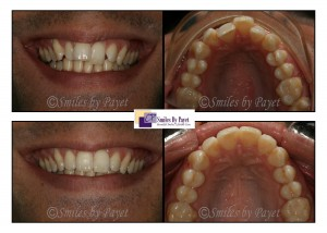 Six Month Braces before-after by dentist Charlotte, Matthews, Pineville, Rock Hill