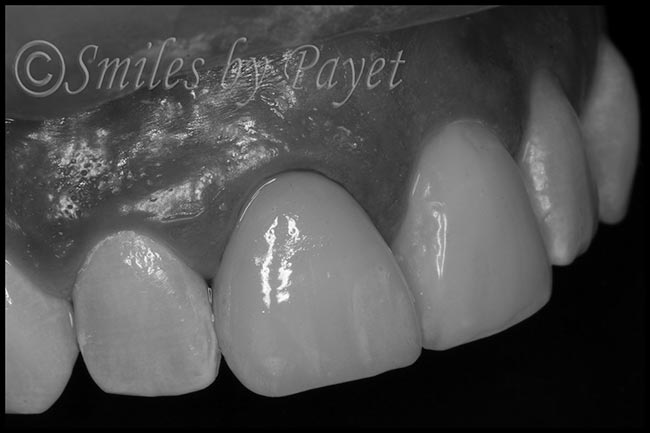 artistic-cosmetic-dentistry-charlotte-matthews-pineville