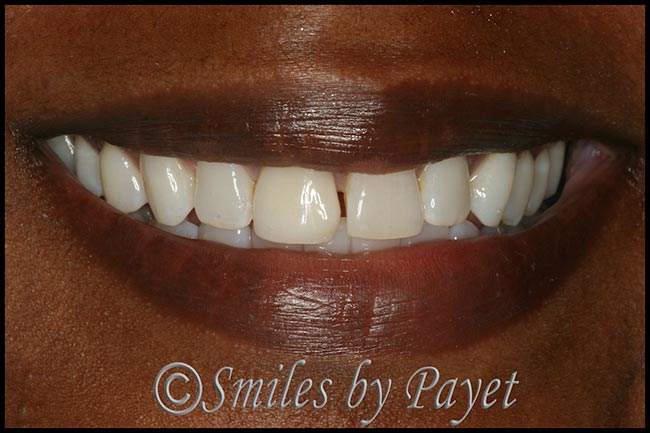 Before a new same-day porcelain crown and bonding with Charlotte dentist Dr. Payet