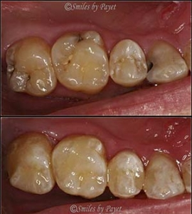 Tooth-colored fillings general dentistry