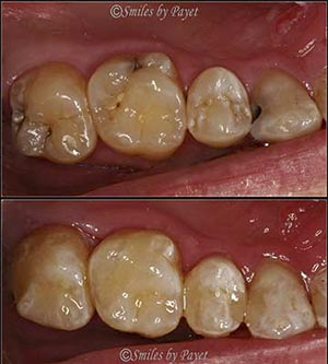 Tooth-colored fillings Charlotte family dentist
