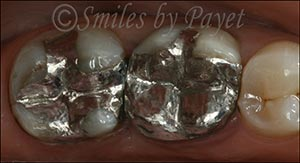 Silver fillings Charlotte Pineville Matthews dentist