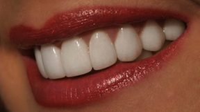 Smile Makeover after-photo of patient who had 20 porcelain veneers by Charlotte dentist Dr. Charles Payet
