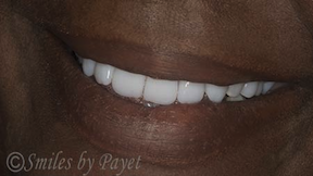 Denture patient's smile
