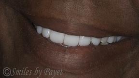 Denture patient's smile
