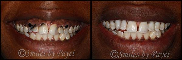dental filling front teeth - photo #47