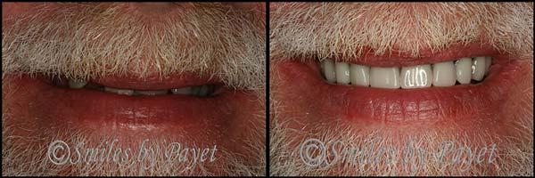 We Make Beautiful Dentures