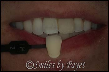 cosmetic-dentist-matching-front-tooth