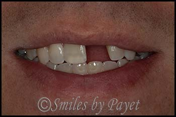 invisalign-then-dental-implant
