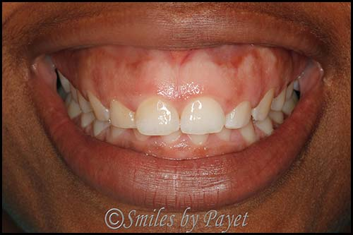 Gummy smile before laser cosmetic dentistry charlotte nc