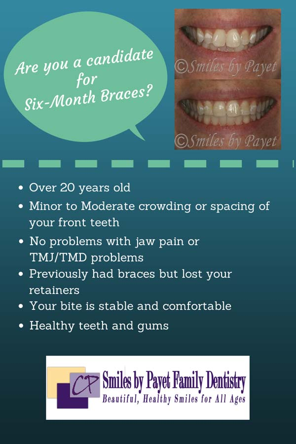 Find out if Six Month Braces will work for you