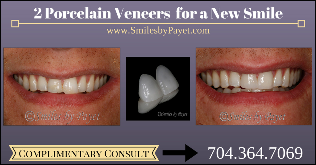 Porcelain Veneers for a New Smile