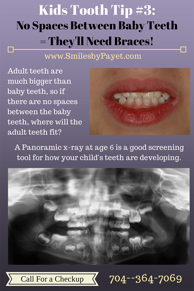 Kids Tooth Tip #3: Spaces Between Baby Teeth are Good