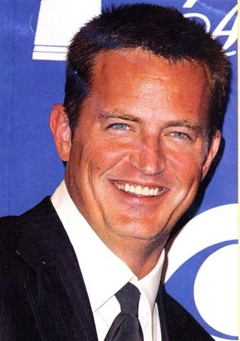Matthew Perry 6 ugly veneers