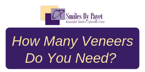 How many veneers do you need; Charlotte cosmetic dentistry
