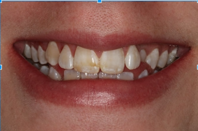 example of tooth fluorosis from a Charlotte dentist