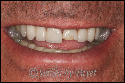 Porcelain veneers can break; 15 year old porcelain veneers