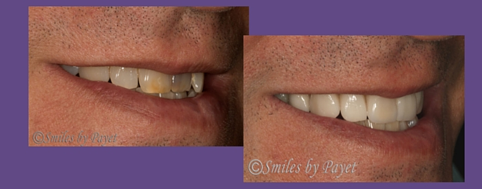 A New Smile with Porcelain Veneers for a Wedding