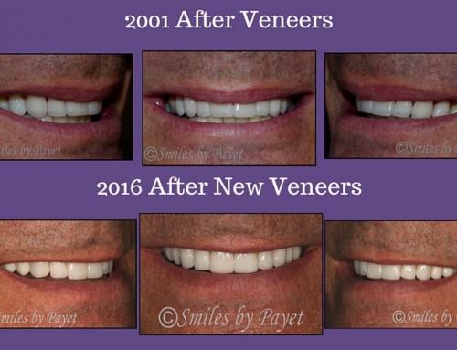 Replacing Veneers after 15 Years