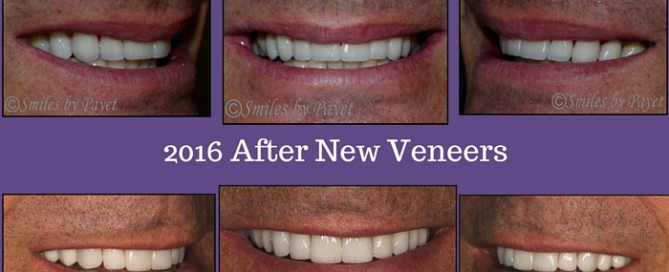 10 porcelain veneers; cosmetic dentist Charlotte NC
