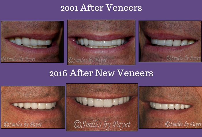 Replacing Veneers after 15 Years