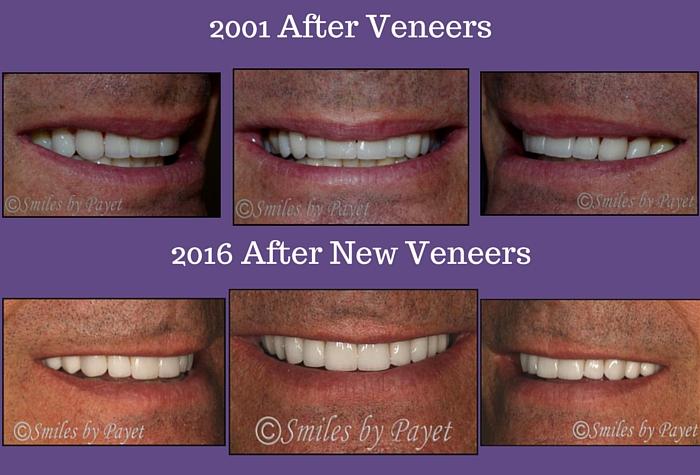 Charlotte Cosmetic Dentist   Replacing Porcelain Veneers ...