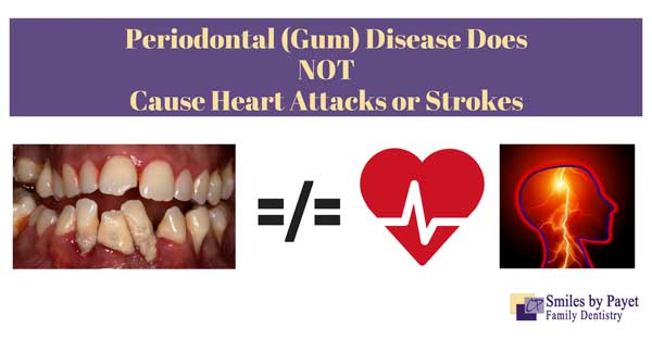 Charlotte dentist Dr. Payet says that gum disease does not cause heart attacks, strokes