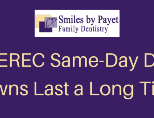 Do CEREC Same-Day Crowns Last a Long Time?