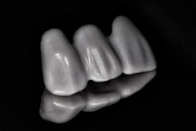 A CEREC E.max bridge made by Charlotte dentist Dr. Charles Payet