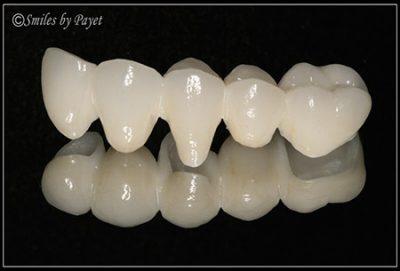 dental crowns bridges charlotte dentist