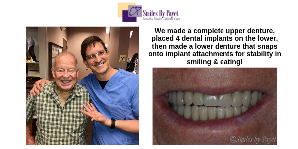 Charlotte dental implant overdentures