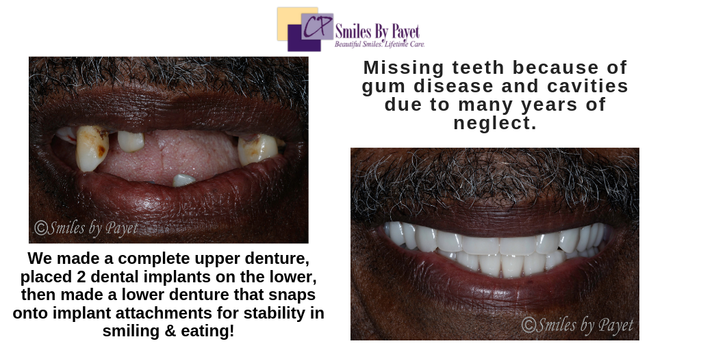 Beautiful dentures and implant dentures by Charlotte dentist Dr. Charles Payet