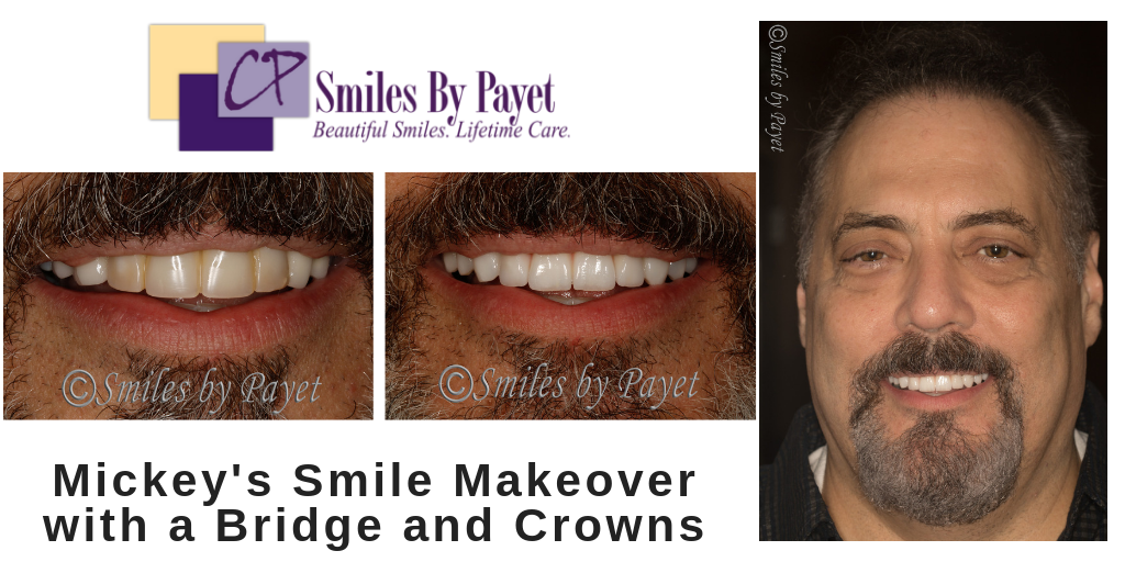Dental bridge and crowns, cosmetic dentistry, charlotte nc