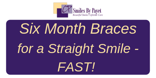 Six Month Braces for a Straight Smile Fast
