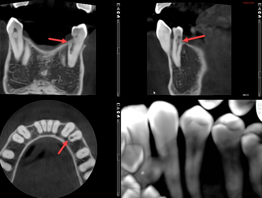 3D cone beam x-ray views, internal & external root resorption
