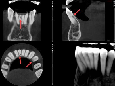3D CT scans of teeth show details