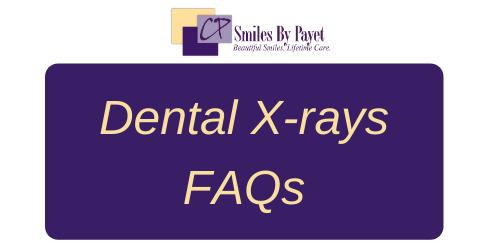 Frequently Asked Questions about dental x-rays