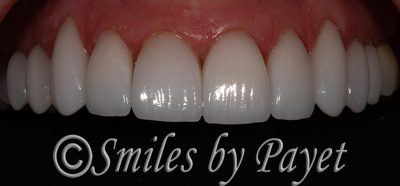 Emax all-porcelain crowns
