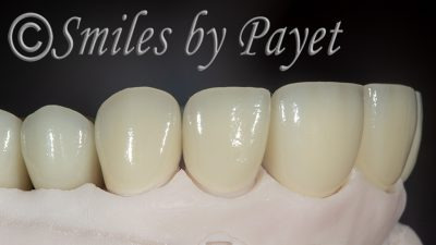 Zirconia all-ceramic crowns