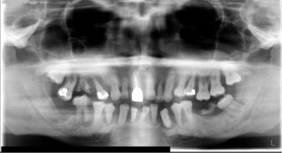 severe periodontal disease x-ray