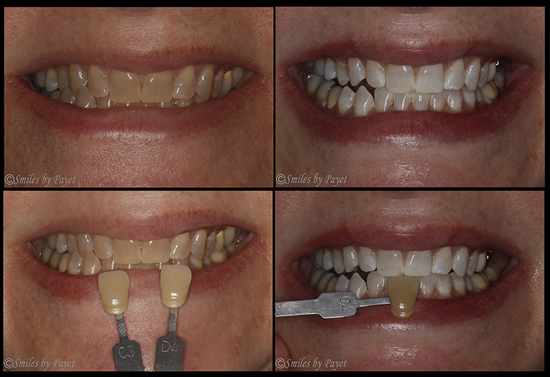 Teeth whitening tetracycline stains