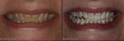 Deep Bleaching Teeth Whitening