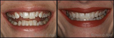 adult braces cosmetic dentistry