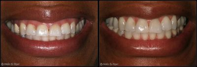 gummy smile cosmetic gum surgery charlotte