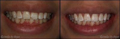 dental bonding charlotte