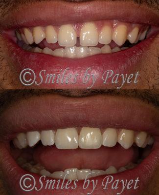 Bonding to close a gap between front teeth